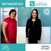 Zapraszamy do wywiadu z panią Magdą, która schudła 23 kg w przeciągu 5 miesięcy w Centrum Dietetycznym Projekt Zdrowie.