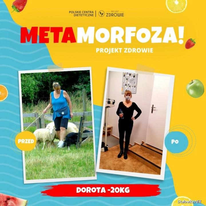 Pani Dorota schudła 20 kilogramów!